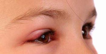5 روش درمان خانگی عفونت چشم، علل ایجاد و درمان آن